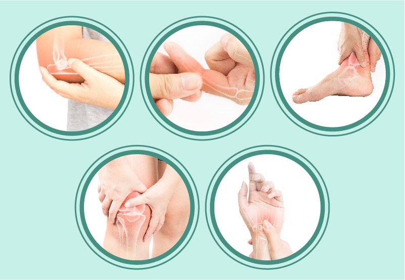 Causas frecuentes de la Artritis Reumatoide