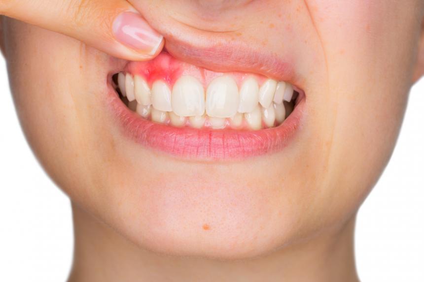 Síntomas de una Infección Dental y su tratamiento