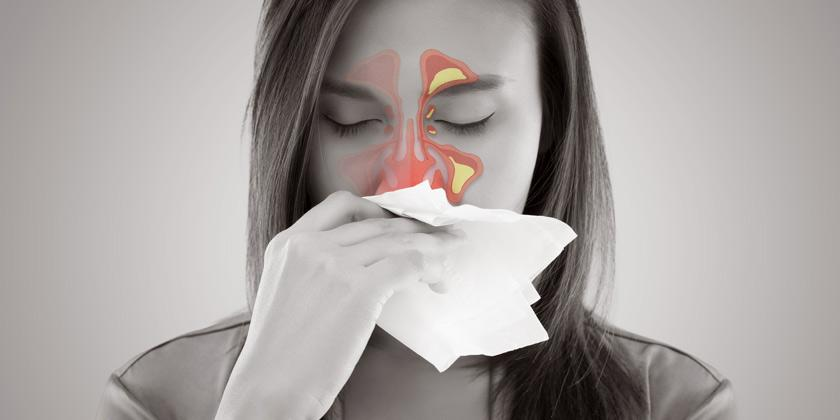 Remedios naturales para tratar la Sinusitis