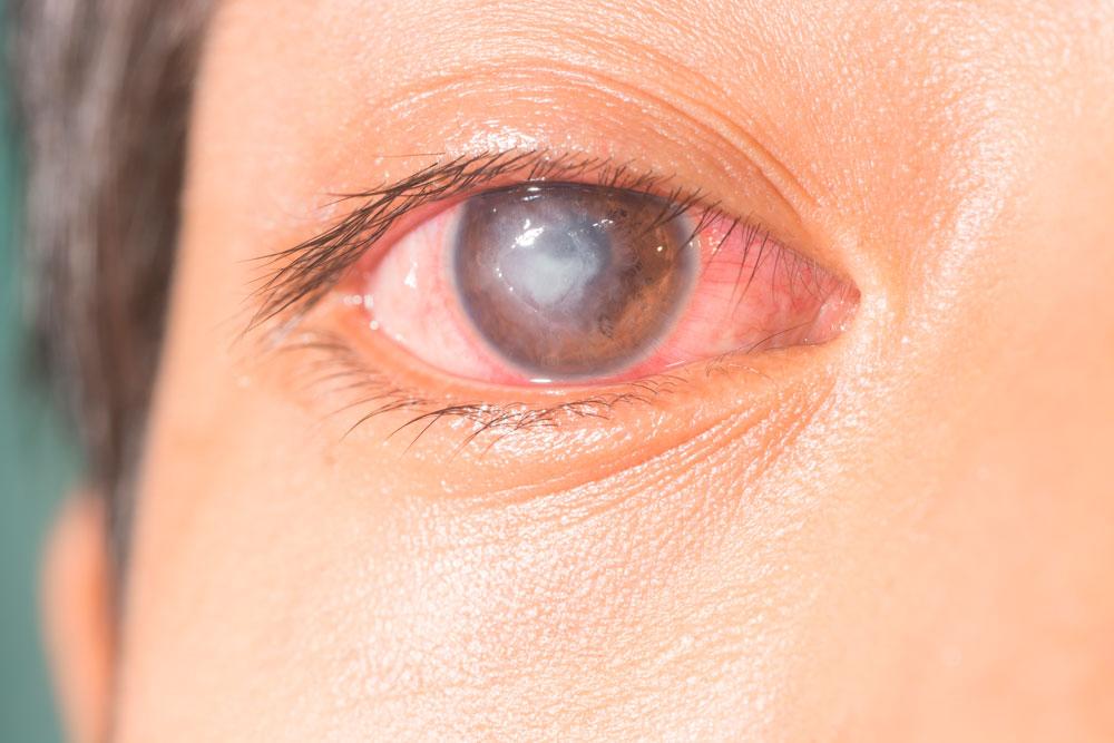 Causas que provocan Úlceras Corneales y su tratamiento