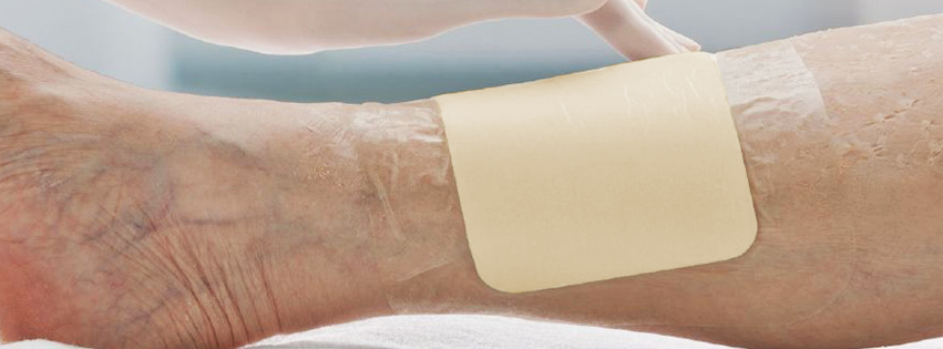 Causas y síntomas de una Úlcera Cutánea o LLagas