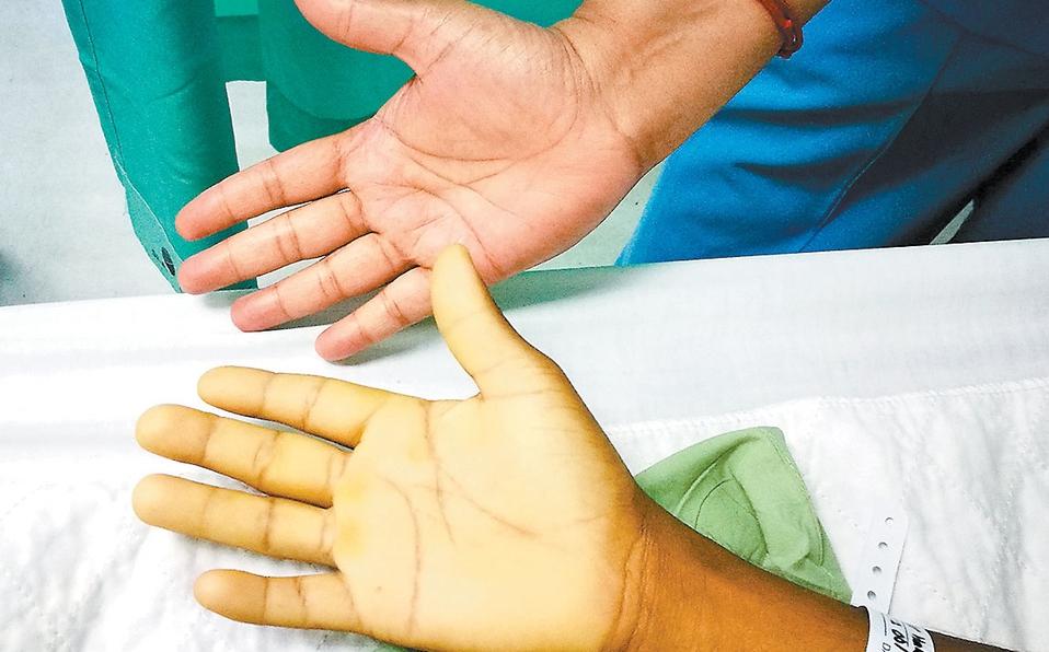 Tipos de Anemia, causas y tratamiento
